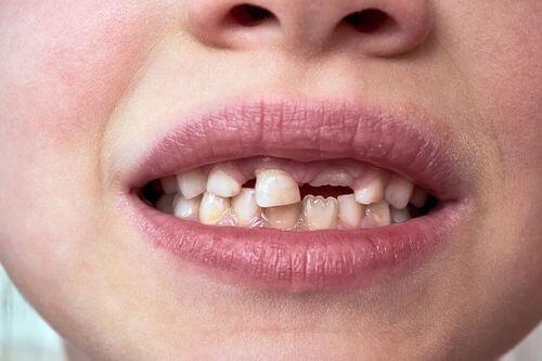 Cura dei denti da latte.