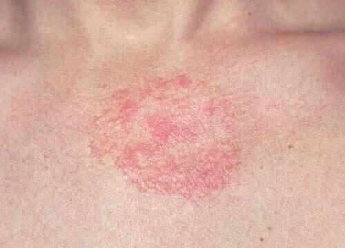 Dermatite irritazione.