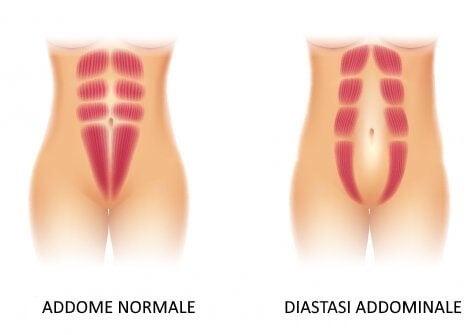 Addome normale e diastasi addominale.