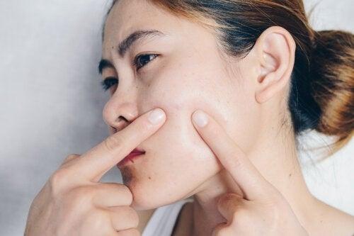 Giorni del ciclo: come cambia la pelle?