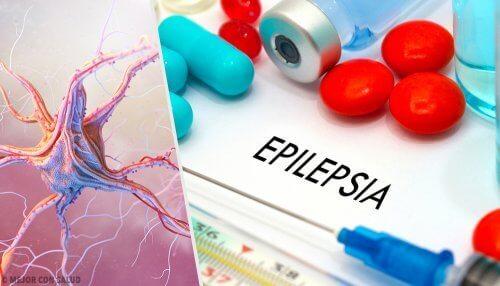 Epilessia.