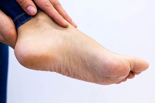 Piante dei piedi pallide e secche.
