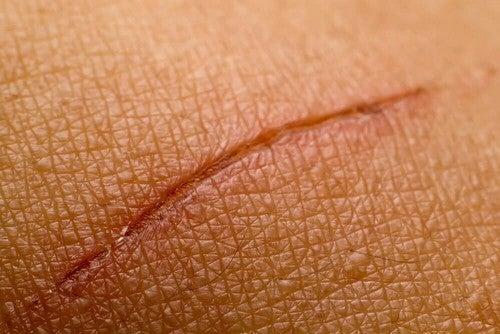 Una cicatrice sulla pelle.