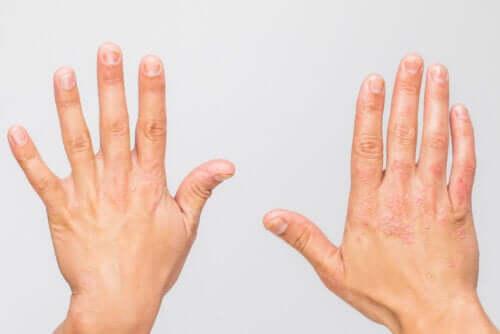 Malattie autoinfiammatorie: di cosa si tratta?