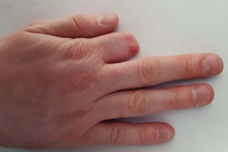 Mano dopo amputazione del dito.