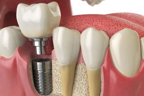 Impianto dentale.