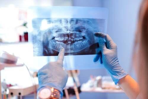 Radiografia dei denti.