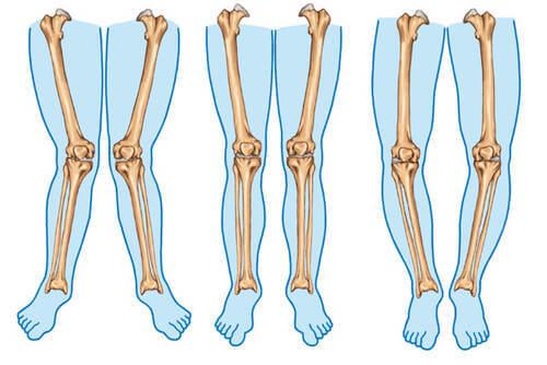 Tipi di gambe.