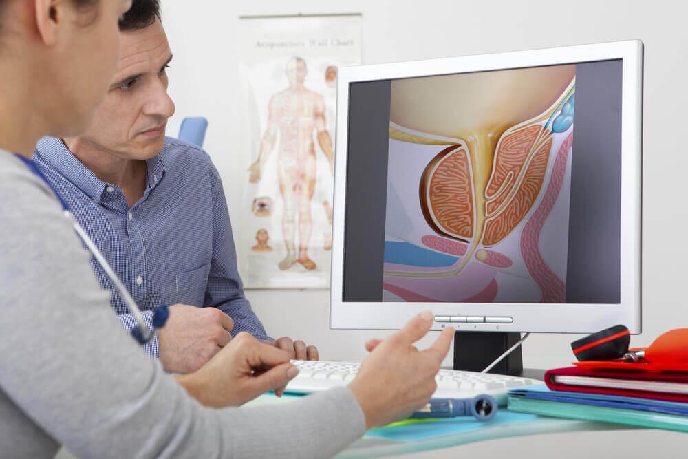 Urologia prostata iperplasia.
