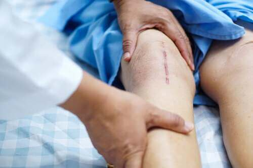 Cicatrice al ginocchio.