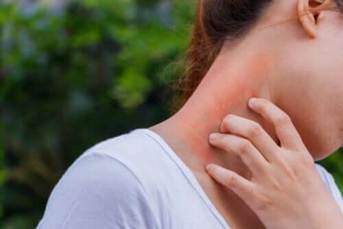 Dermatite e corticosteroidi: quale legame?