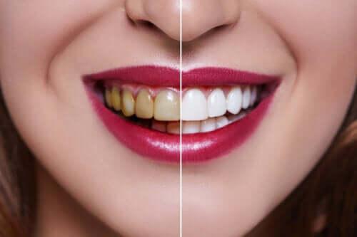 Denti macchiati: quali sono le cause?