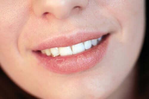 Labbra secche: le cause più comuni