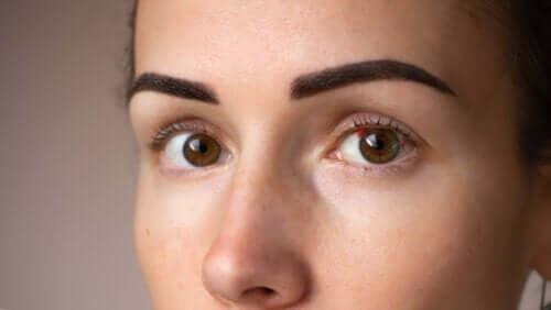 Macchie rosse negli occhi: perché compaiono?
