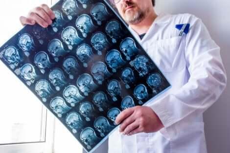 Dottore controlla tomografia computerizzata cerebrale.