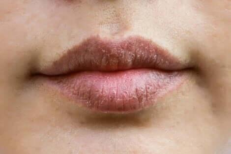 Labbra che si seccano.