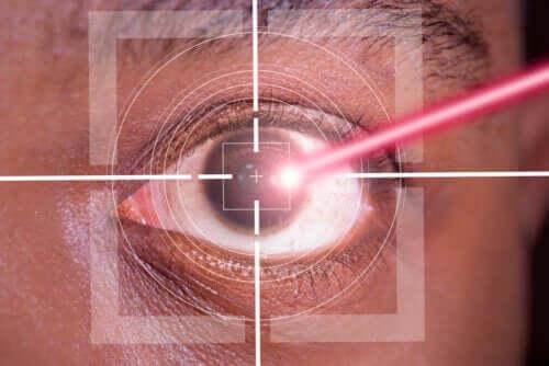 Chirurgia refrattiva laser LASIK: pro e contro