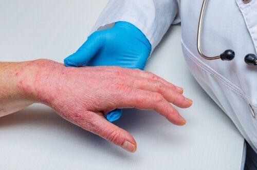 Psoriasi e malattia coronarica: sono in relazione?