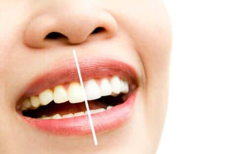 Ragazza con denti macchiati.
