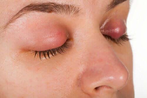 La blefarite: sintomi e possibili trattamenti