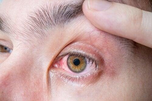 Melanoma oculare: sintomi e cause