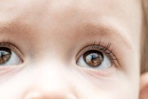 Il glaucoma infantile può portare alla cecità