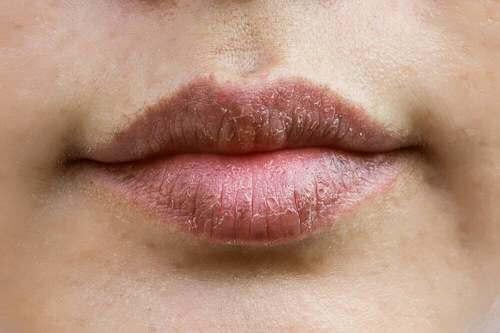 Labbra screpolate.