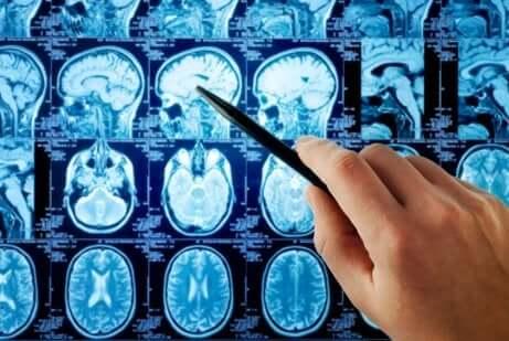 Mano indica le diverse aree del cervello.