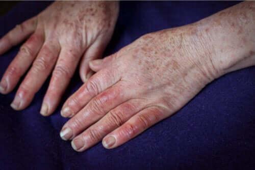 Malattia di Buerger: cause, sintomi e trattamenti