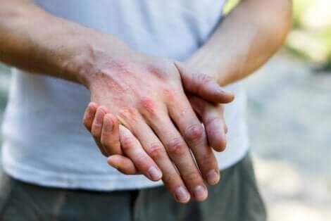 Uomo con dermatite alle mani.