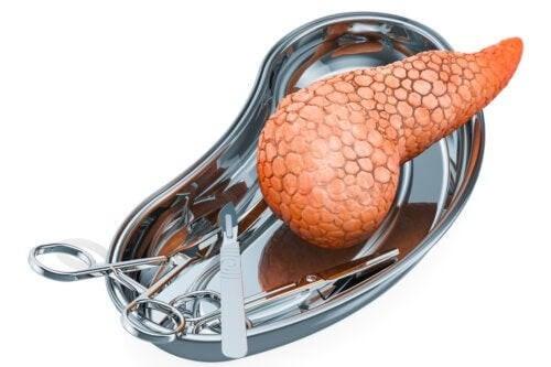 Trapianto di pancreas: indicazioni e rischi