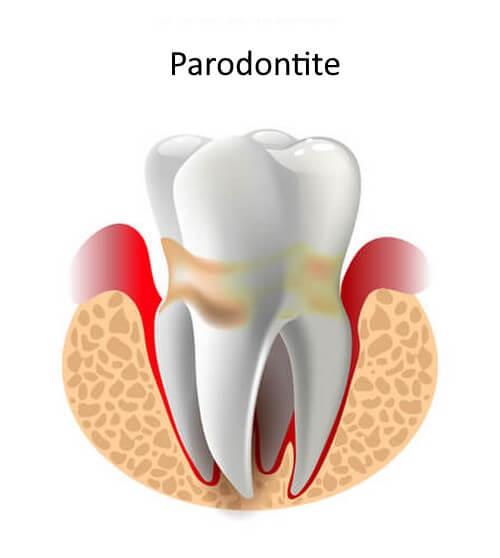 Parodontite con dente infiammato.