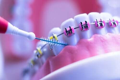 Apparecchio ortodontico: 8 precauzioni