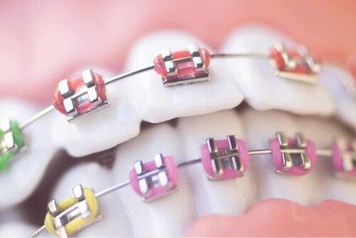 Ortodonzia nei bambini: piastrine colorate.