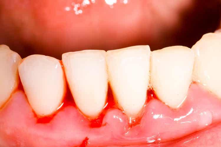 Infezioni della bocca e Alzheimer.