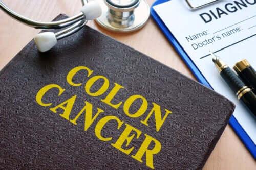 Prevenire il tumore al colon con gli esami di controllo