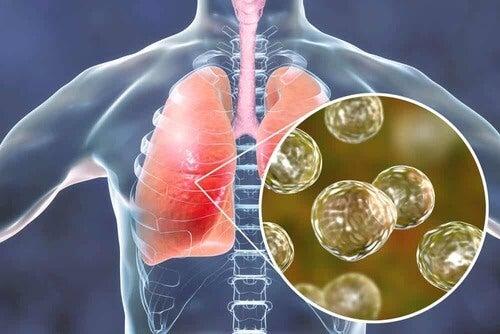 Infezione polmonare.