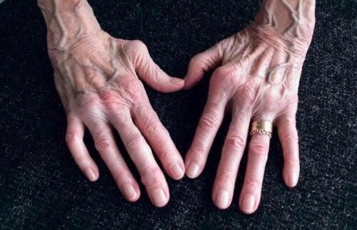 Mani con artrite reumatoide.