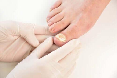 Prevenire la micosi delle unghie: 7 consigli