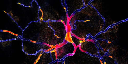 Differenziare Parkinson e atrofia sistemica multipla