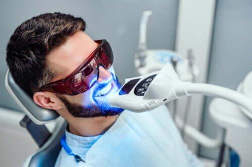 Lo sbiancamento dei denti quanto dura?