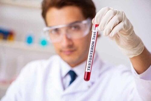 Andropausa e test del testosterone.