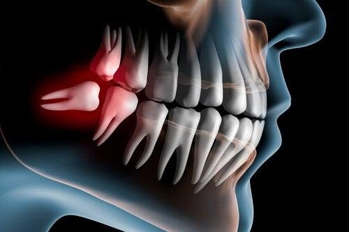 Denti impattati: cosa sono e come si curano?