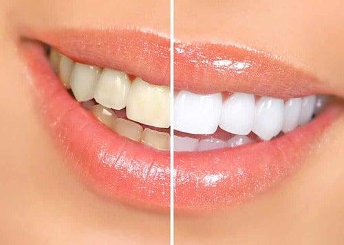 Denti prima e dopo lo sbiancamento.
