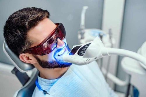 Sbiancamento dei denti dal dentista.