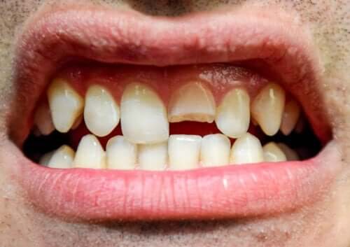 Trauma dentale: definizione e diversi tipi