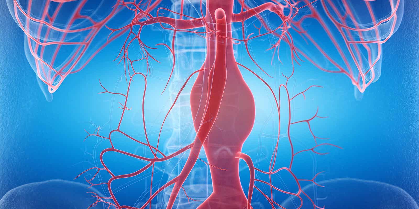 Aneurisma nel vasi sanguigni.