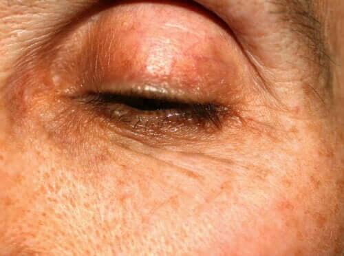 Meibomianite: cause, sintomi e trattamenti