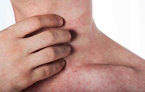 Reazione allergica cutanea.