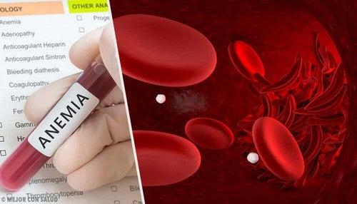 Analisi del sangue e anemia.